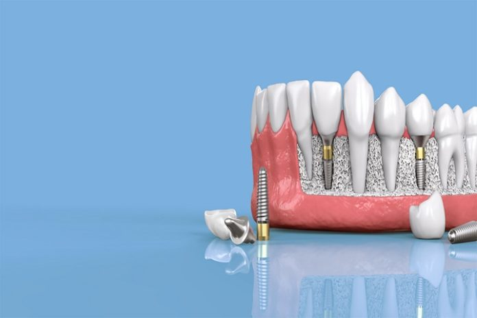 how long is a dental implant used