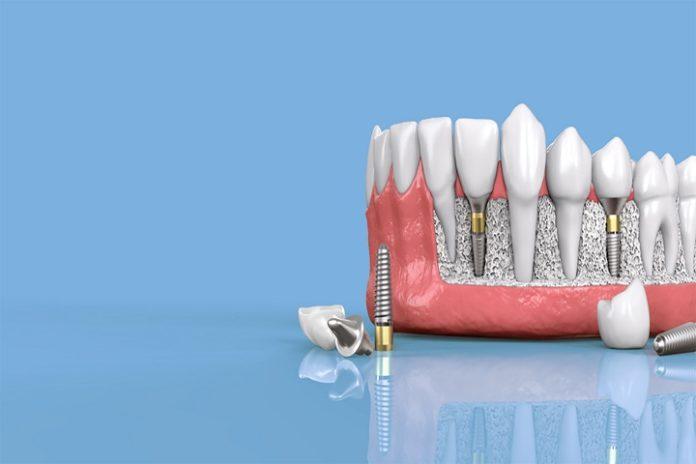 diş implantı ne kadar süre kullanılır