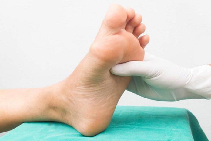 şeker hastalığı ayak yarası